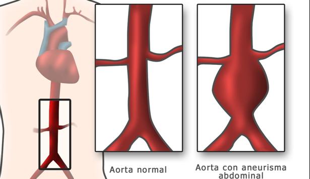 endoprótesis endovascular